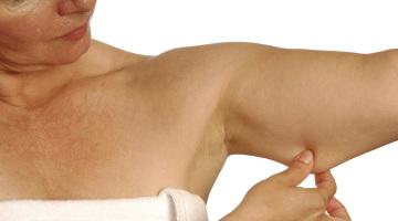 como quitar grasa y adelgazar brazo